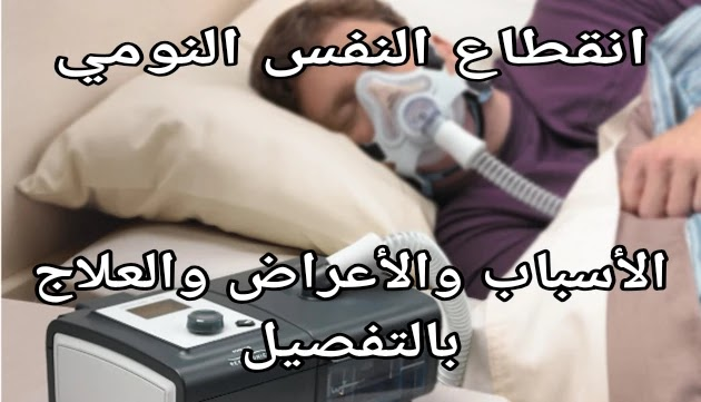 علاج انقطاع النفس النومي
