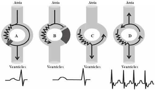 AV Nodal Reentrant Tachycardia ECG