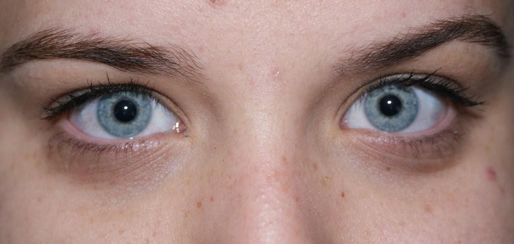 Los ungüentos de los hinchazones bajo los ojos de la farmacia