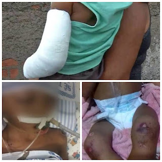 Barbárie: Casal é preso após espancar e estuprar bebês de apenas 2 anos