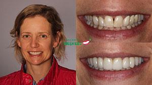Trồng răng sứ giả nha khoa uy tín tphcm