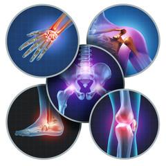 التعامل بوعي مع الآلام العضلية غير محددة السبب (الفيبروميالجيا)