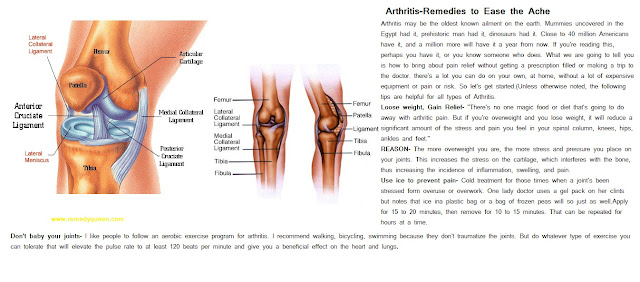 Home Remedies To Treat Arthritis