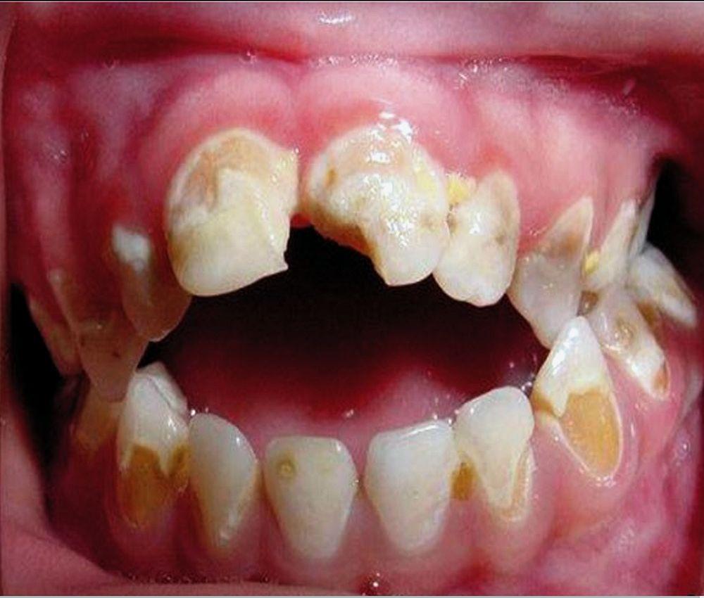 medicina-bucal-leucemia