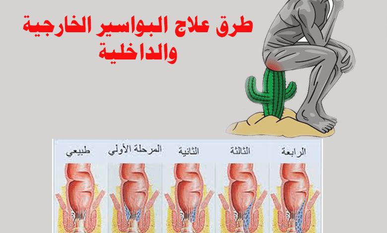 تحية حصباء السعي وراء ماهو علاج البواسير عند النساء Dsvdedommel Com