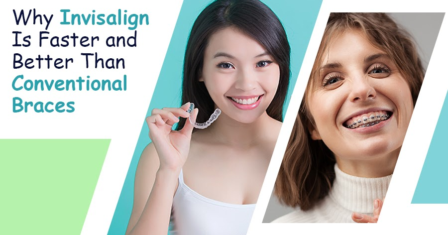 Why Invisalign Is Faster and Better Than Conventional Braces