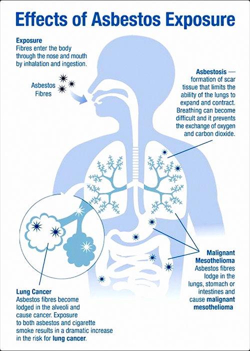 Image Asbestos Exposure Symptoms