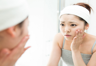 Types of Acne - Causes, Prevention and Treatment of Acne