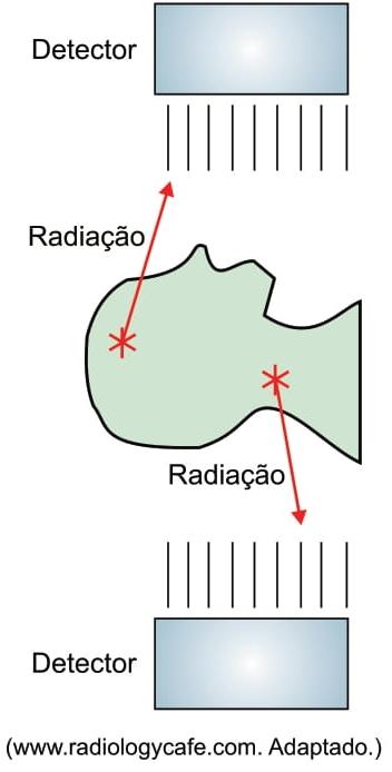 FAMERP 2021: Em certos exames de medicina nuclear, uma substância radioativa é administrada ao paciente que, posteriormente, é acomodado em um aparelho. Quando o elemento radioativo decai, os detectores do aparelho captam parte dos fótons emitidos.
