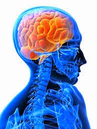 Cara mengobati kelumpuhan akibat stroke