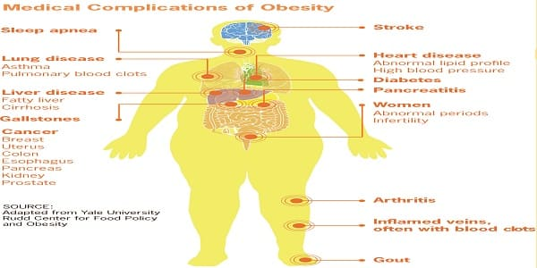 Medical-complications-of-obesity