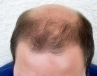 reducing baldness