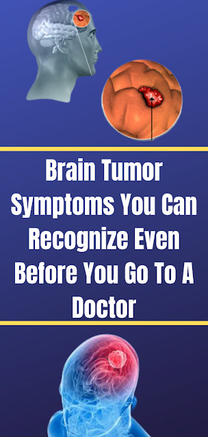 Brain Tumor Symptoms You Can Recognize Even Before You Go To A Doctor