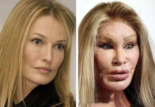 celebridades-cirurgias-platicas-01