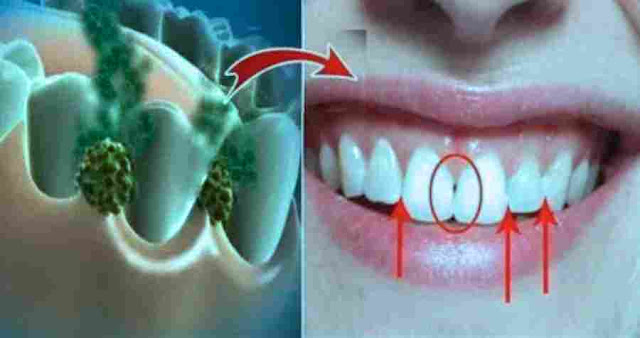 Cara Alami Membersihkan Kerak Pada Gigi (Karang Gigi)