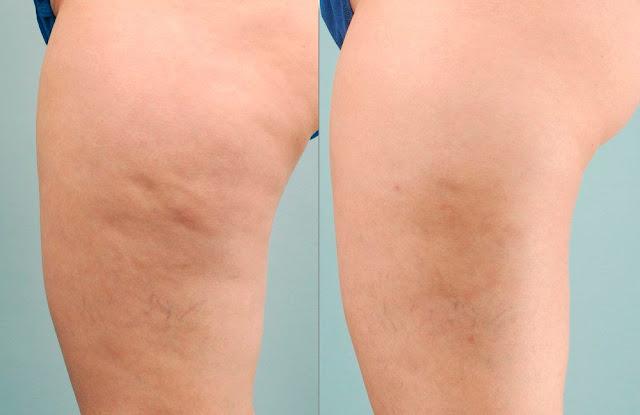 Dites adieu à la peau d'orange: le vinaigre de cidre peut éliminer la cellulite rapidement