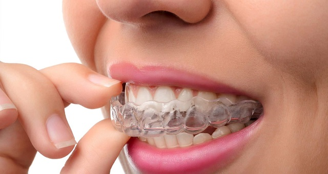 how much does invisalign cost insurance cover retainer expenses