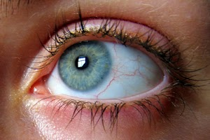 Causes of Eye Floaters the Symptoms and Treatment