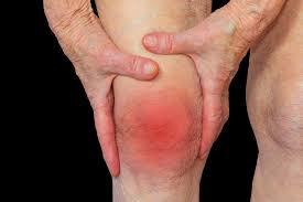 Symptoms, diagnosis and treatment of rheumatoid arthritis