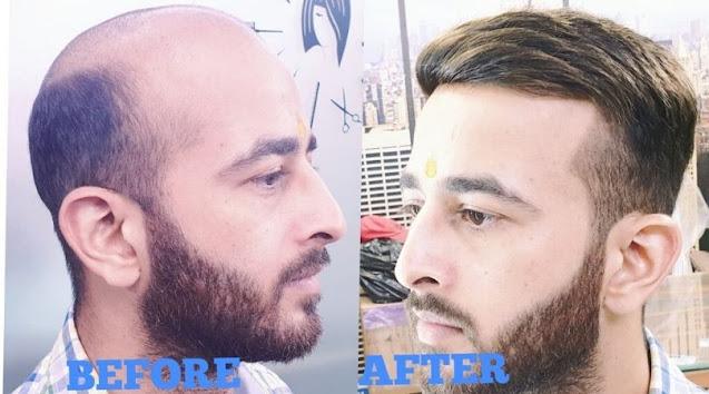 non surgical hair replacement ya Hair Patch System kya hai, kitne prakar ka hota hai