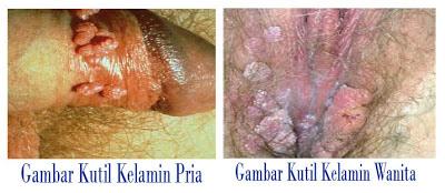 Hasil gambar untuk penyakit kutil kelamin