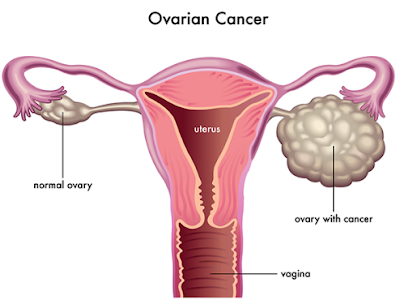 Ways to lower the risk of ovarian cancer, treatment of ovarian cancer