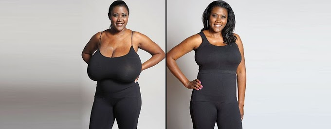 Breast reduction surgery:Benefits and complications