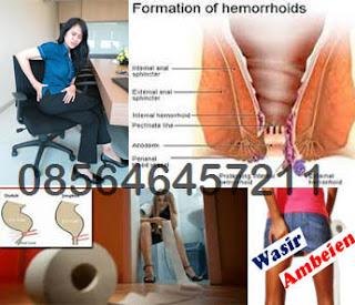 Obat Non Generik Untuk Wasir (Hemoroid)