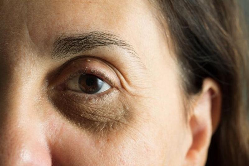 """""""Kadınlar, yaşlanma belirtilerine karşı medikal estetiğe yöneldi"""""""