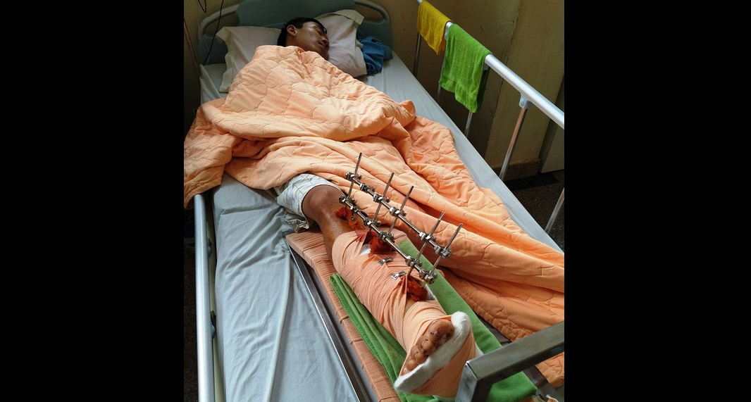 Gia Lai: Nam thanh niên bị chém đứt lìa chân