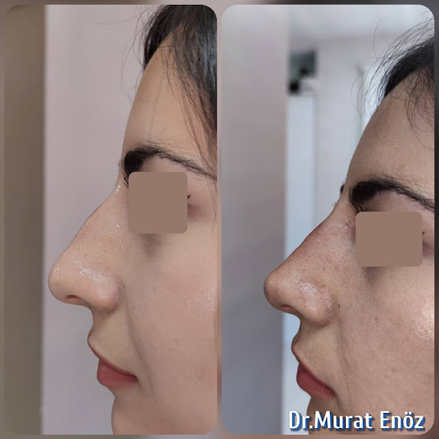 Nose filler injection,Non-surgical rhinoplasty in Turkey,Injectable nose job,Non-surgical nose job,The 5 Minute Nose Job in İstanbul,Liquid Rhinoplasty,