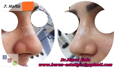 Before and the after the open technique rhinoplasty in İstanbul, Turkey - Rhinoplasty images - after rhinoplasty recovery - edema after rhinoplasty - rhinoplasty photos - Rhinoplasty Istanbul - Turkey Rhinoplasty - Rhinoplasty before and after images - Before and after photos for nose job in İstanbul - Photographs before and after the rhinoplasty operation in Turkey