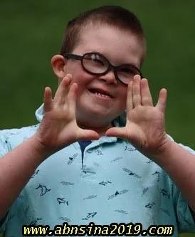 ما هى متلازمة داون Down Syndrome؟