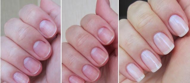 Remèdes naturels et surprenants pour renforcer les ongles mous