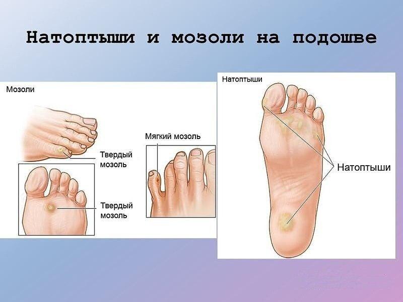 народная медицина народные средства лечения потенции