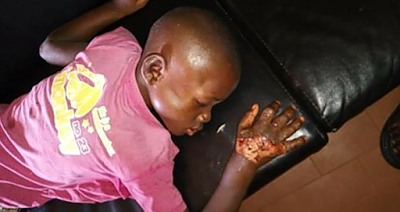 Photos: Woman Batters Fiance's Son With Log Of Wood, Dips His Hand In Hot Water And Pepper