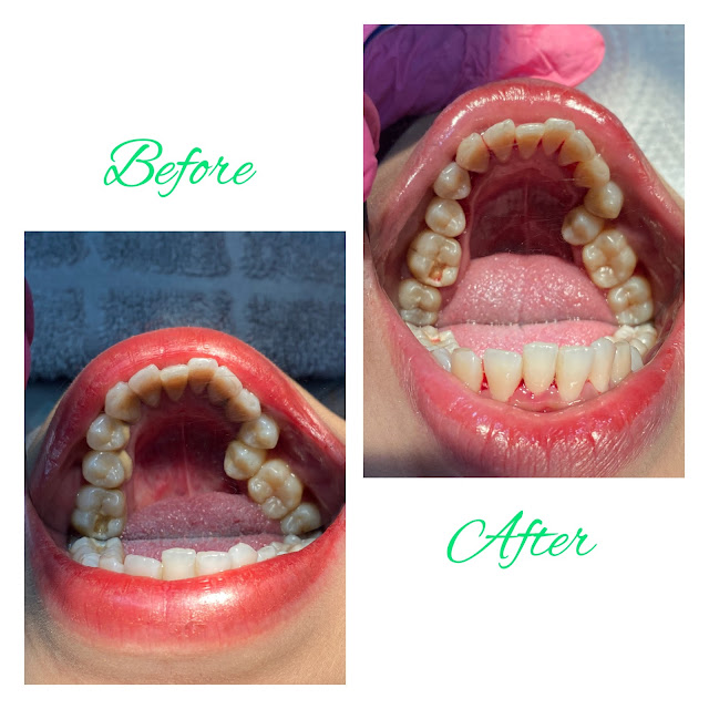 before-after-treatment-gigi