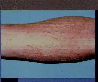 Dermatitis alérgica de contacto (DAC)