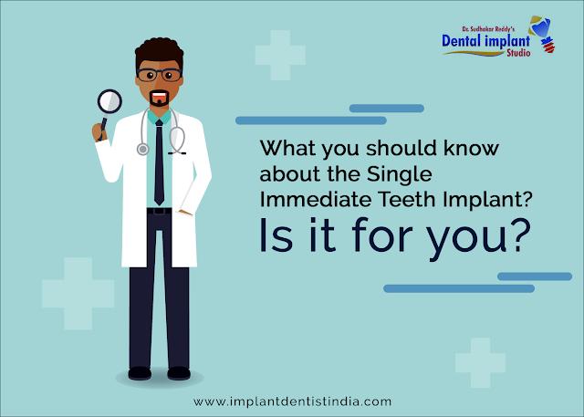 immediate dental in bangalore