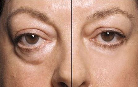 Causas de tener bolsas en los ojos