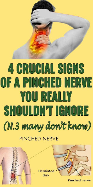 4 Crucial Signs of a Pinched Nerve You Really Should't Ignore