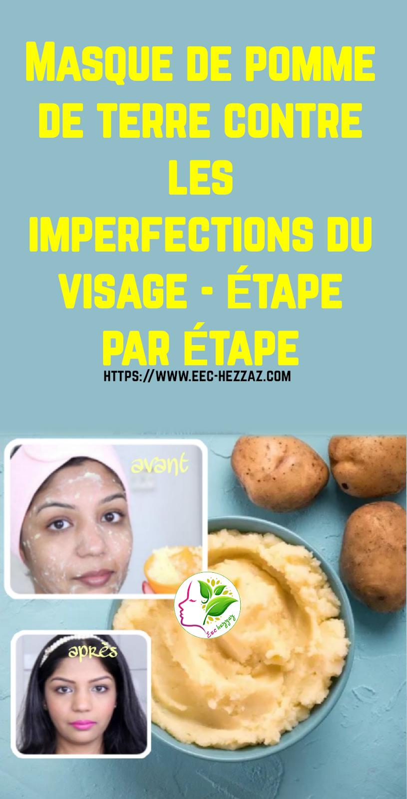 Masque de pomme de terre contre les imperfections du visage - étape par étape