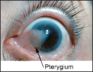 http://www.pusatmedik.org/2016/08/pterigium-definisi-penyebab-dan-pengobatan-serta-gejala-klinis-penyakit-pterigium-menurut-ilmu-kedokteran.html