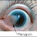 Pterigium Definisi Penyebab Dan Pengobatan serta Gejala Klinis Penyakit Pterigium Menurut Ilmu Kedokteran