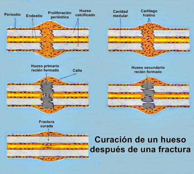 La formación de hueso nuevo después de sufrir una fractura es posible