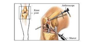 total knee arthroplasty Delhi - aakash healthcare