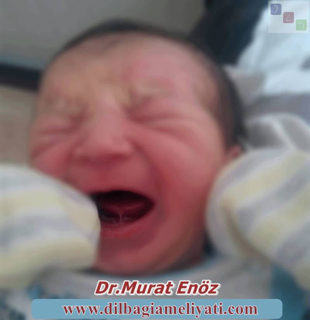 Bebekler Ağlarken de Dil Bağı Net Olarak Görülebilir!