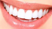 Denta Seal sbiancano i denti e vengono incorporati nello smalto