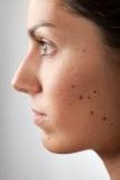 8 signos de enfermedad en tu cara