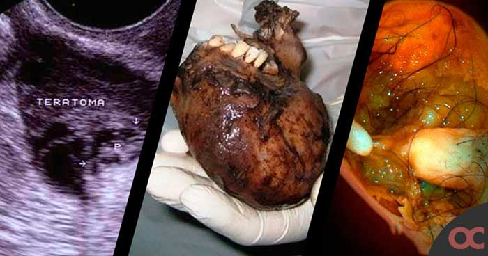 Teratoma Tumor